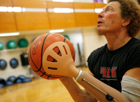 Prosthetic Hand Designed For Basketball Michael Feger S